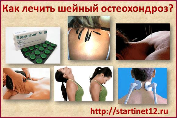 Как лечить остеохондроз шейного отдела позвоночника?