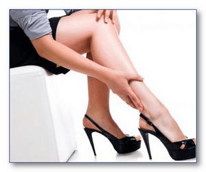 Варикозное расширение вен, причины и симптомы