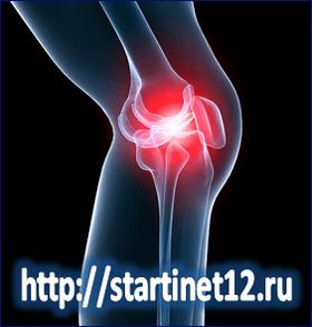 Деформирующий артроз коленных суставов. Причины. Симптомы. Лечение