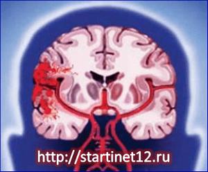 Ишемический и геморрагический инсульт. Первые признаки. Помощь и лечение. Последствия инсульта