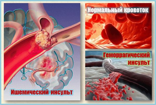 Различные виды инсульта: ишемический и геморрагический