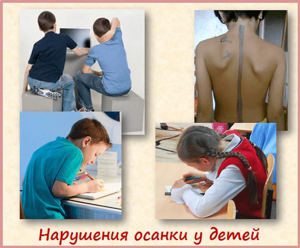 Причины нарушения осанки у детей