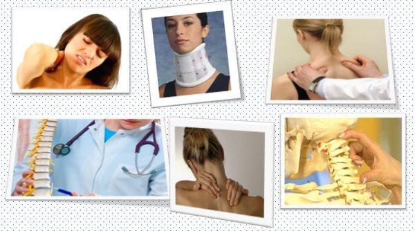 Шейный остеохондроз. Болевой синдром