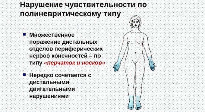 Полинейропатия и онемение рук и ног по типу перчаток и носков