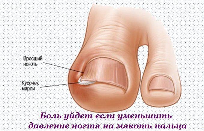 Боль пройдет при уменьшении давления на отечный ноготь