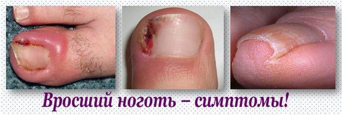 Симптомы вросшего ногтя на ноге
