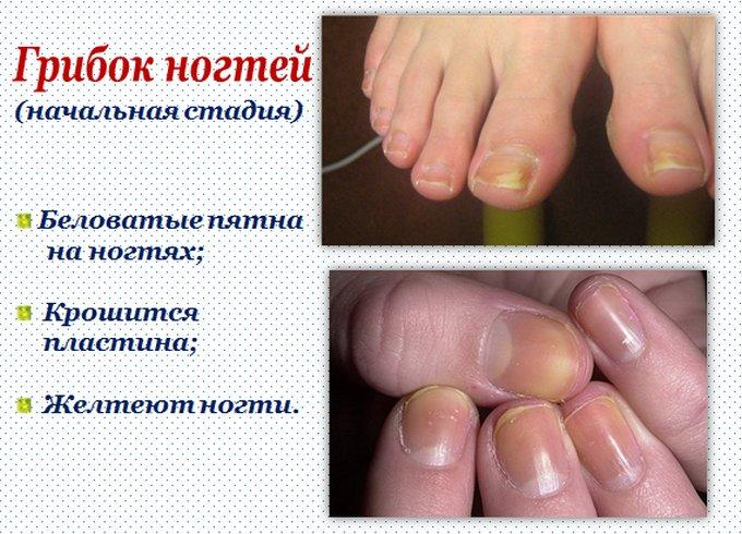 Лекарство от грибка на ногтях ног список