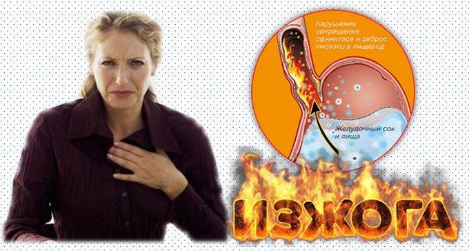 Изжога - это заброс кислой пищи из желудка в пищевод