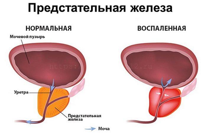 Разновидности болезни по особенностям течения патологии