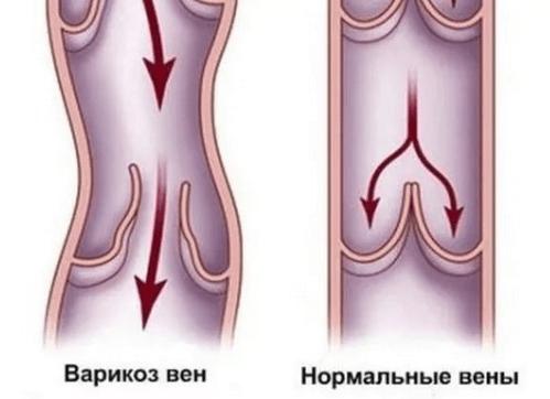 Причины варикозного расширения вен