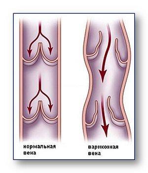 стоимость операции на венах ног