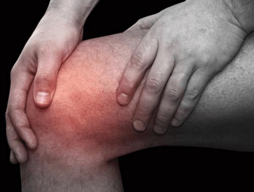 Артроз коленных суставов, причины, симптомы
