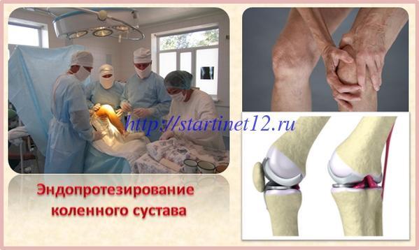 Лечение деформирующего артроза