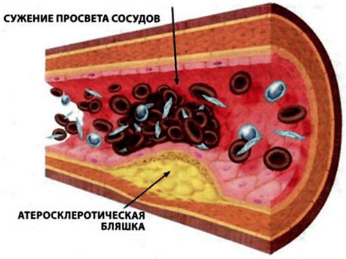 показатели холестерина в крови у женщин
