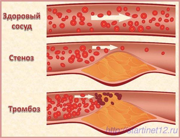 Стеноз и тромбоз артерий