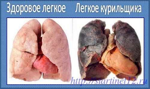 Легкие курильщика почернели от никотина