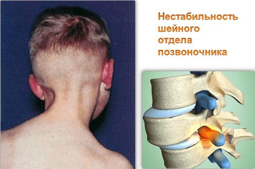 Нарушение статической функции шейного отдела позвоночника у детей