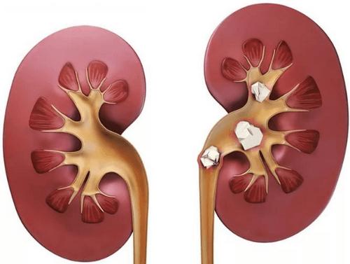 Причины мочекаменной болезни
