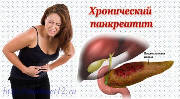Хронический панкреатит - боли!