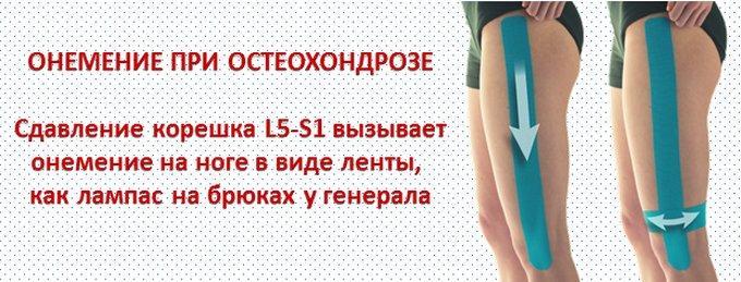 Главные причины онемения руки