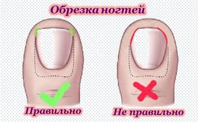 Правильная стрижка ногтей