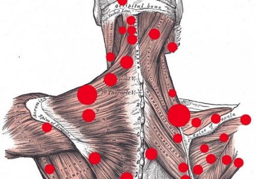 Триггерные точки на теле человека