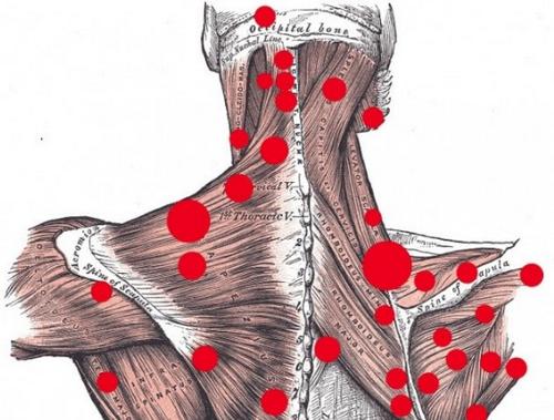 Почему хрустят суставы Причины и лечение хруста в суставах
