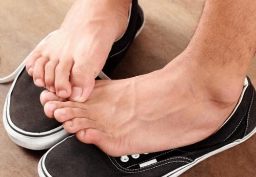 Грибок ногтей - чешутся стопы