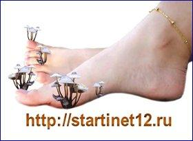 Грибог ногтей. Лечение народными средствами