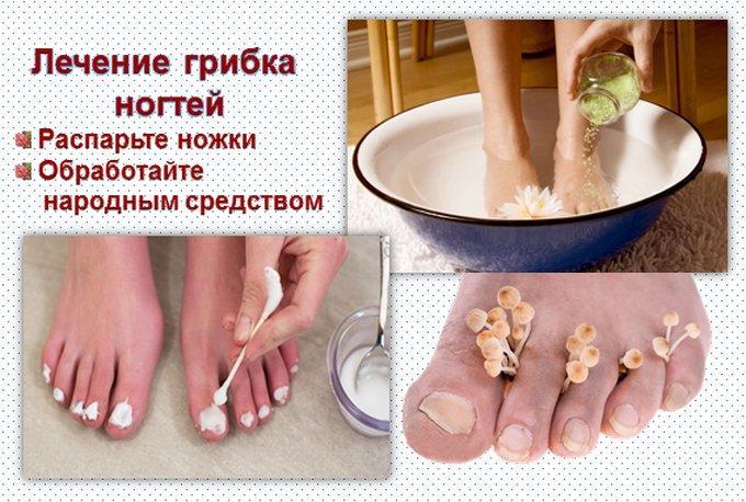 Ванночки от грибка ногтей на ногах в домашних условиях