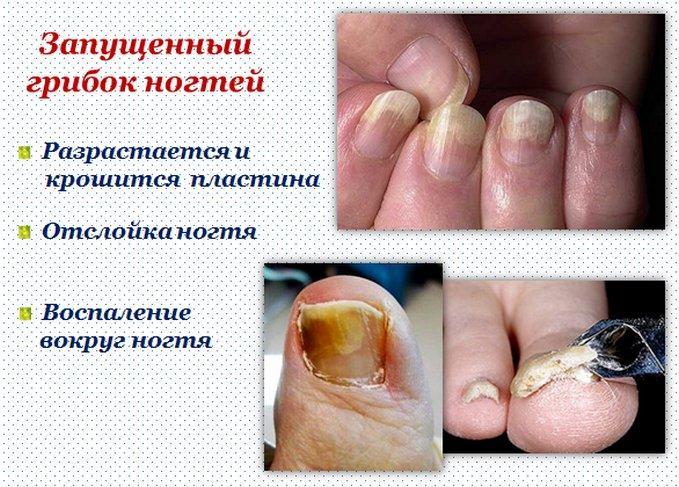 Запущенная стадия грибка ногтей