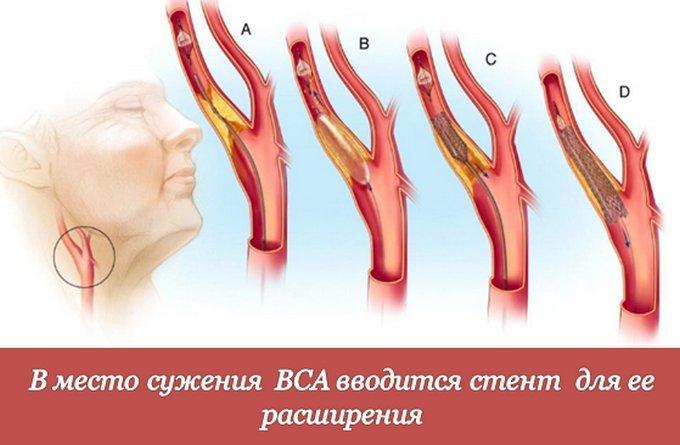 Лечение стеноза внутренней сонной артерии - стентирование