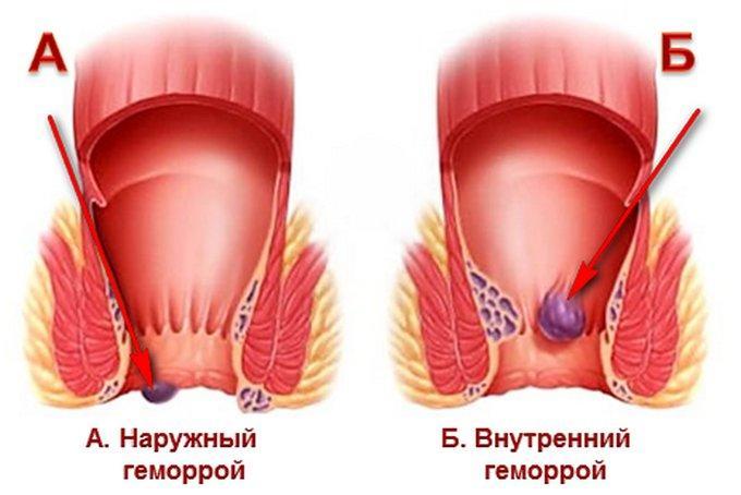 какие лекарства пить при повышенном холестерине