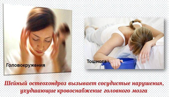 Приступ головокружения и тошноты при шейном остеохондрозе
