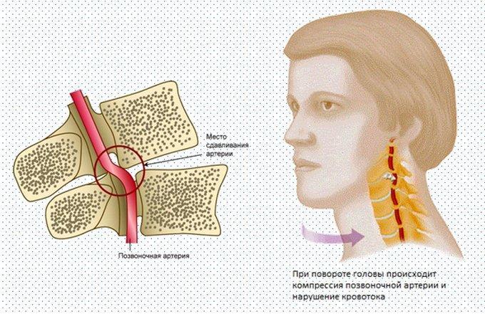При остеохондрозе шейного отдела позвоночника кружится голова