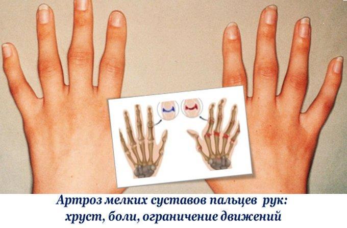 Боли и хруст в суставах рук артрит лучезапястного сустава причины