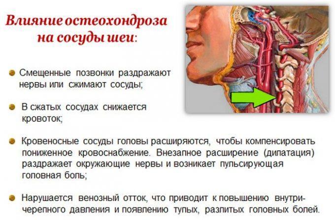 Зачем проводится УЗДГ сосудов головы и шеи при остеохондрозе