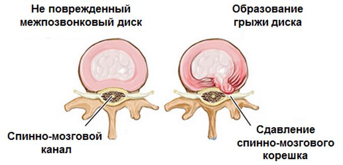 Сдавление спинно-мозгового корешка грыжей диска