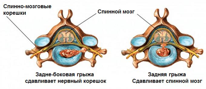 Задняя и задне-боковая грыжа