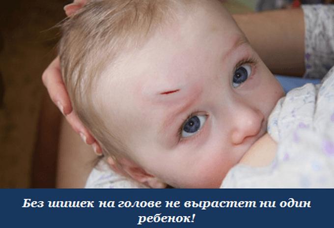 Сотрясение головы как лечить ребенка