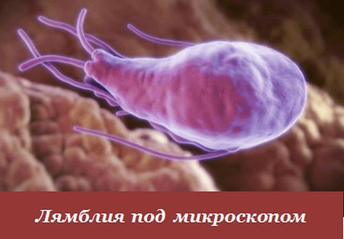 Чем опасны лямблии? ? Симптомы, лечение традиционными и народными средствами
