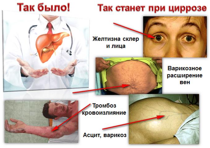 Цирроз печени. Симптомы болезни