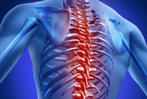 Грудной остеохондроз. Симптомы и лечение