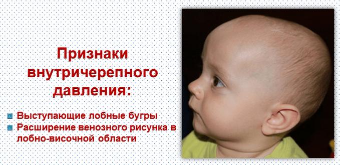 стоит беспокоиться, как лечить у грудных детей внутри черепное давление задачи