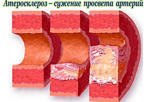 Холестерин у мужчин. Норма