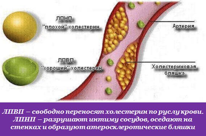 как понизить холестерин и сахар в крови