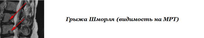 Грыжа Шморля на МРТ