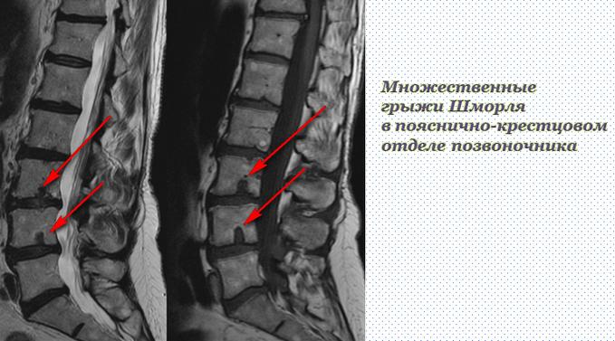Грыжа Шморля при остеохондрозе