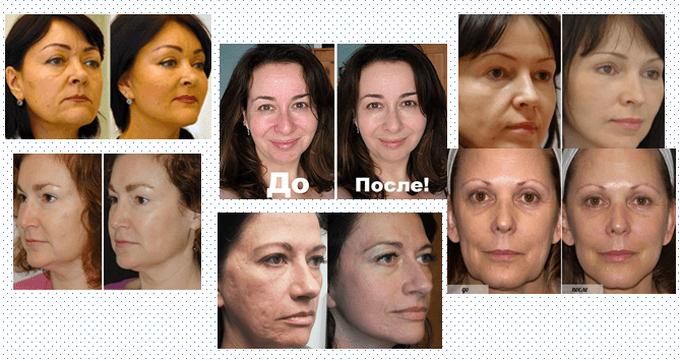 Фото женщин До и После желатиновых масок