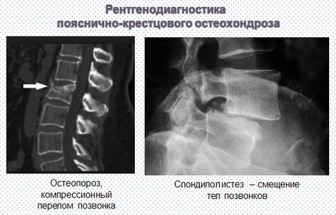 Признаки остеохондроза на рентгене